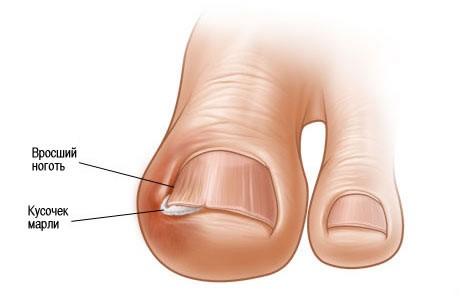 также возможно оттянуть края ногтевого ложа от вросшего ногтя с помощью пластыря. поднятие ногтя в случае...